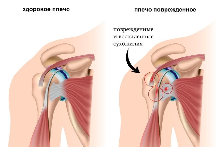 Вывих плечевого сустава лечение сан-петербург выпот коленного сустава симптомы