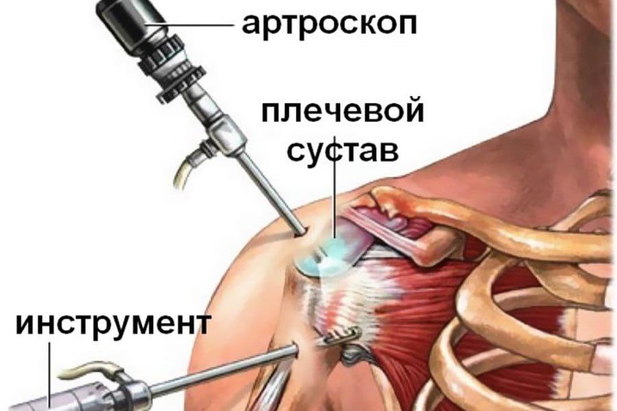 Артроскопия плечевого сустава что это такое артроз голеностопного сустава 4 степени симптомы и лечение