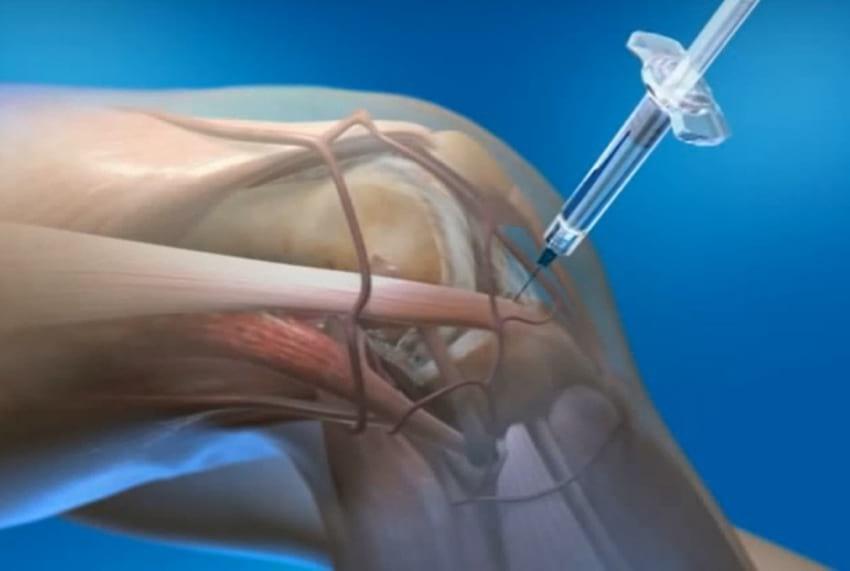 Возможно ли вводить ферматрон в сустав при его воспалении повреждения в области коленного сустава