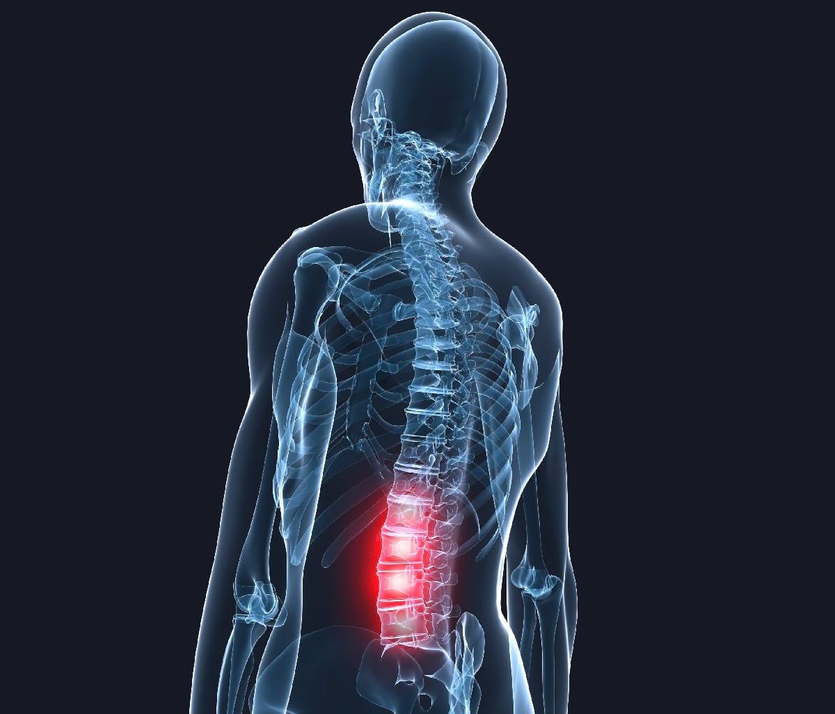 схема лечения шейного радикулита