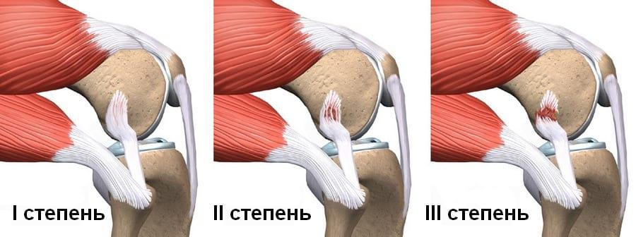 как быстро востановить подвижность плечевого сустава после травмы