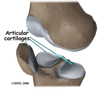 Суставный хрящ в колене данный препарат минимизирует болезненные ощущения в мышцах и суставах