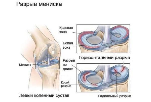 Разрыв мениска коленного сустава цена внезапная резкая боль в коленном суставе