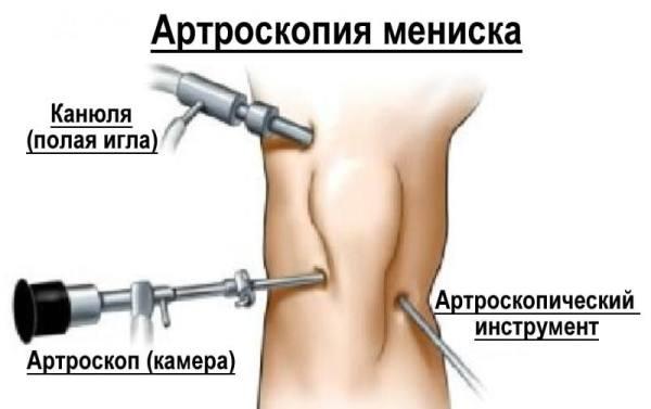 лечение артроза коленного сустава в спб отзывы