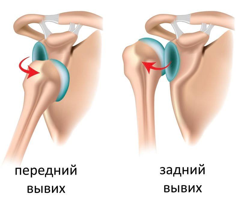 Лечение от вывиха плечевого сустава снять боль при артрозе коленных суставов