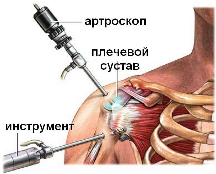 Вывих плечевого сустава как лечить алесей бубновский когда болят суставы
