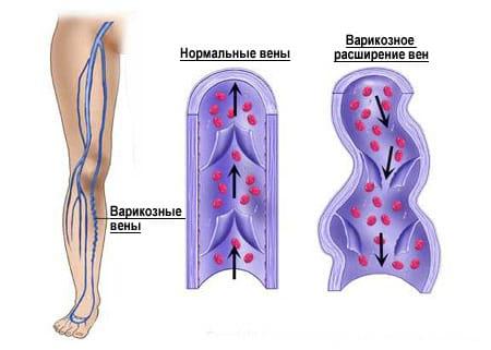 Флебология - варикозное расширение вен. СпортКлиника СПб.