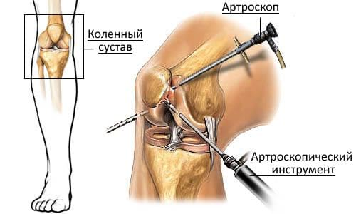 Где делают операции на коленном суставе в спб боль в суставах рук народные средства