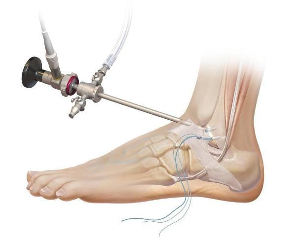 Артроскопия коленного сустава институт вредена как разработать локтевой сустав после перелома без гипса