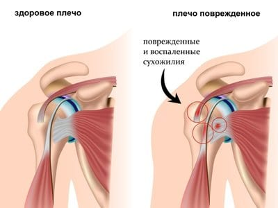 Изображение - Артроскопия плечевого сустава клиника 02-arthro-plecho