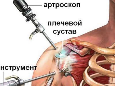 Изображение - Артроскопия плечевого сустава клиника 03-arthro-plecho