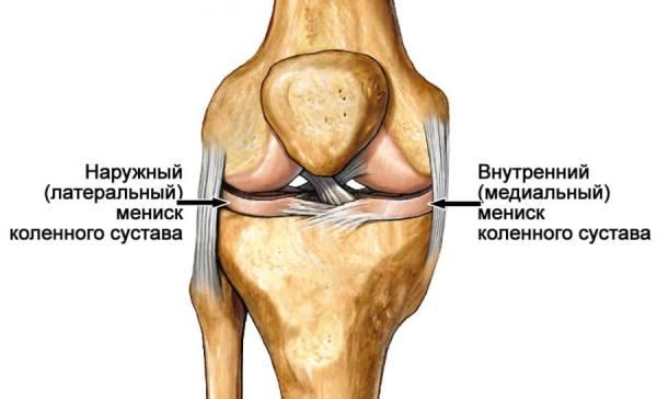 дегенеративное повреждение наружного мениска коленного сустава