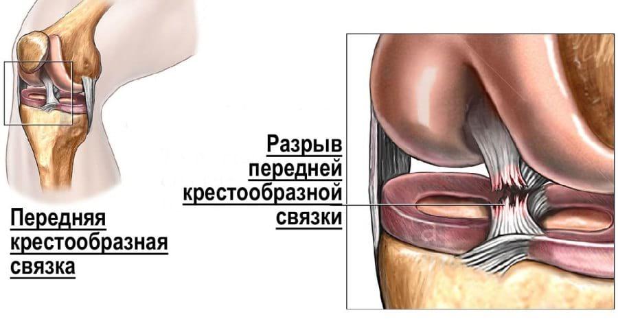 Визуализация механизма разрыва передней крестообразной связки.