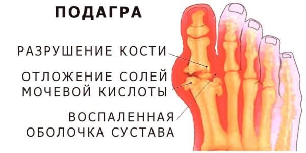 Пошаговое лечение шейного остеохондроза