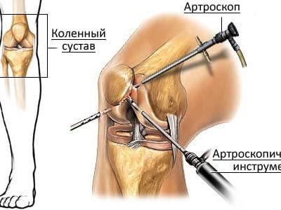 Самые современные методы лечения артроза -