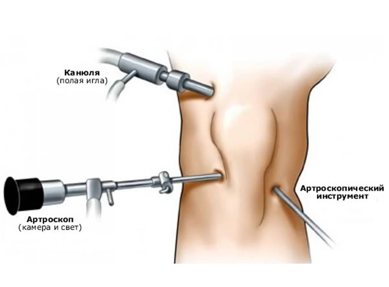 Вся операция осуществляется через несколько проколов в колене
