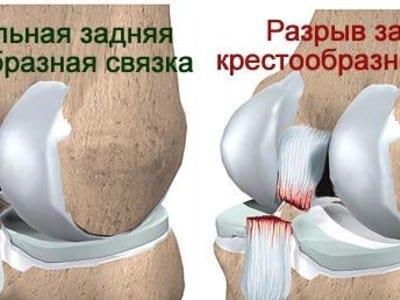 Изображение - Разрыв задней крестообразной связки коленного сустава 3-zks