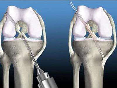 Изображение - Разрыв задней крестообразной связки коленного сустава 4-zks